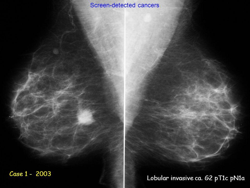 Caso 2 - 2003 Case 1 - 2003 Lobular invasive ca. G2 pT1c pN1a Screen-detected cancers