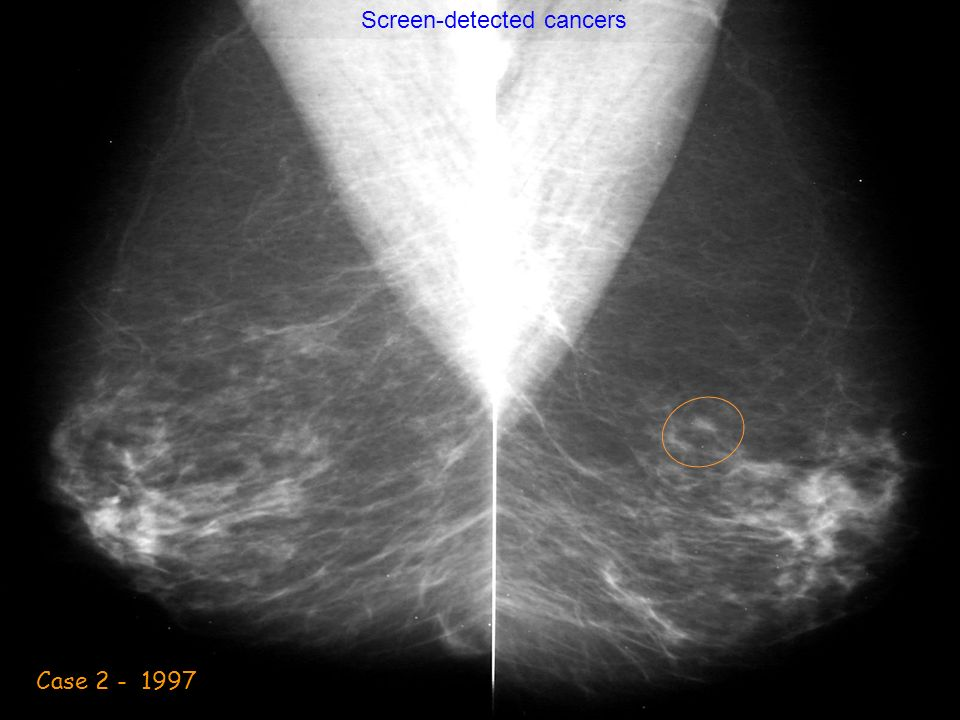 Case 2 - 1997 Screen-detected cancers