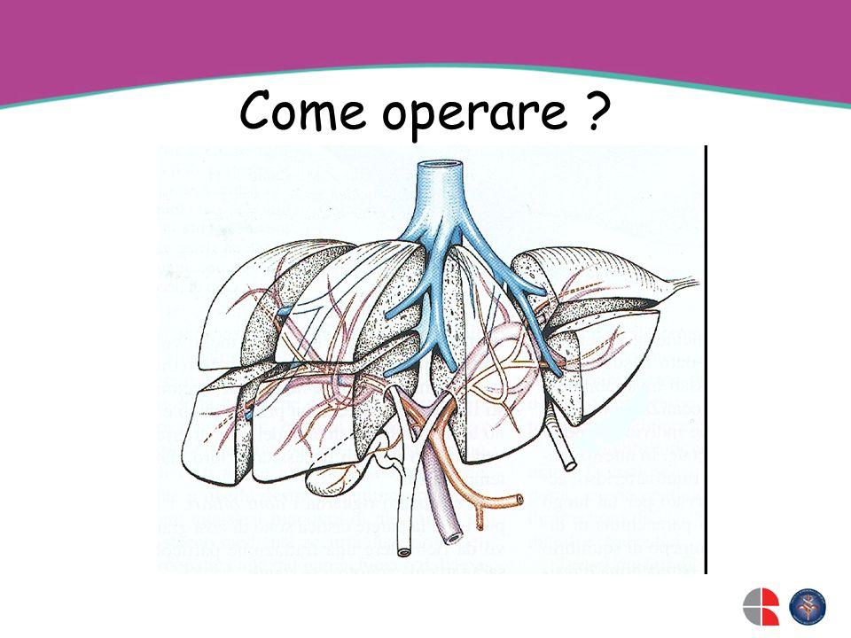Come operare ?