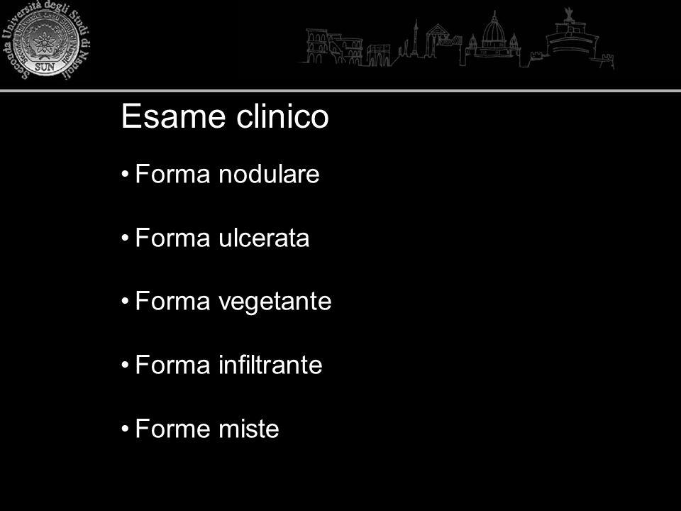 Forma nodulare Forma ulcerata Forma vegetante Forma infiltrante Forme miste Esame clinico