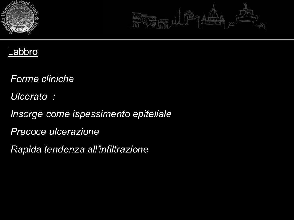 Labbro Forme cliniche Ulcerato : Insorge come ispessimento epiteliale Precoce ulcerazione Rapida tendenza allinfiltrazione
