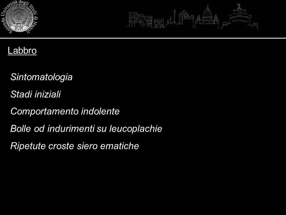 Labbro Sintomatologia Stadi iniziali Comportamento indolente Bolle od indurimenti su leucoplachie Ripetute croste siero ematiche