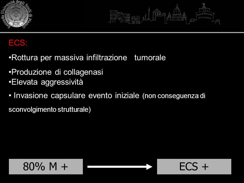 80% M +ECS + ECS: Rottura per massiva infiltrazione tumorale Produzione di collagenasi Elevata aggressività Invasione capsulare evento iniziale (non c