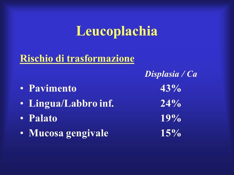 Leucoplachia Rischio di trasformazione Displasia / Ca Pavimento43% Lingua/Labbro inf.24% Palato19% Mucosa gengivale15%