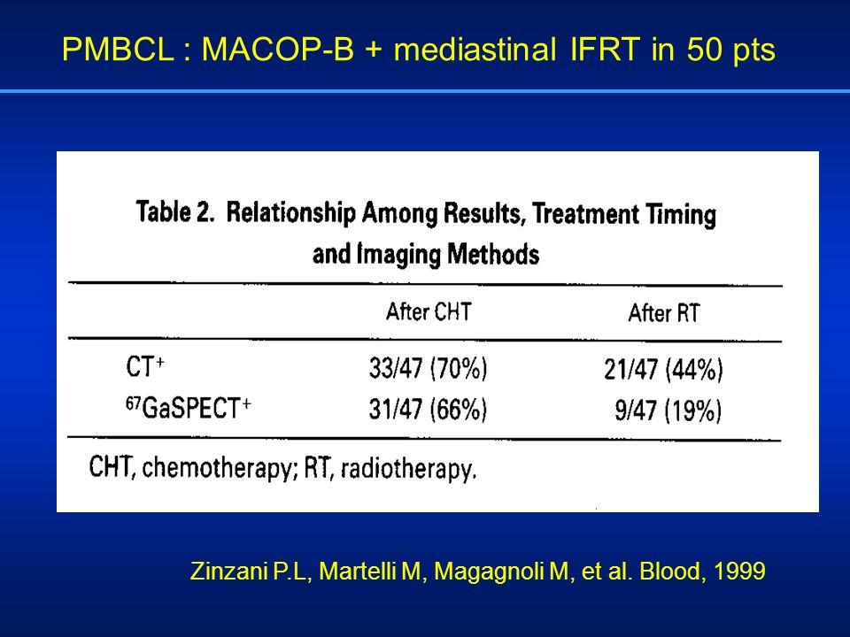 Zinzani P.L, Martelli M, Magagnoli M, et al. Blood, 1999 PMBCL : MACOP-B + mediastinal IFRT in 50 pts