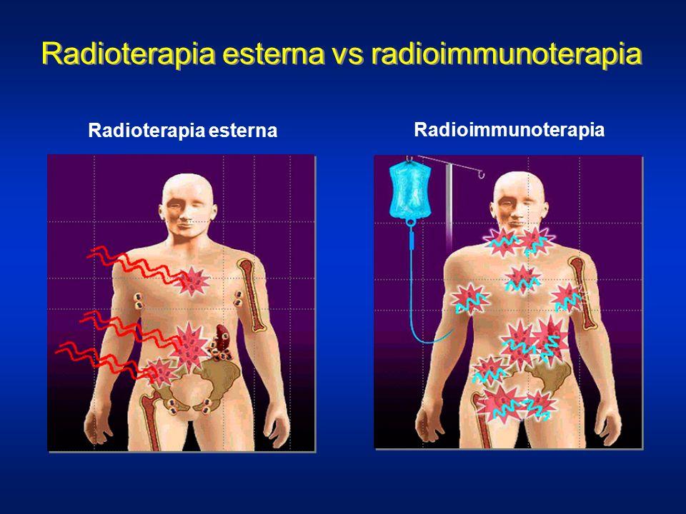 Radioterapia esterna vs radioimmunoterapia Radioterapia esterna Radioimmunoterapia