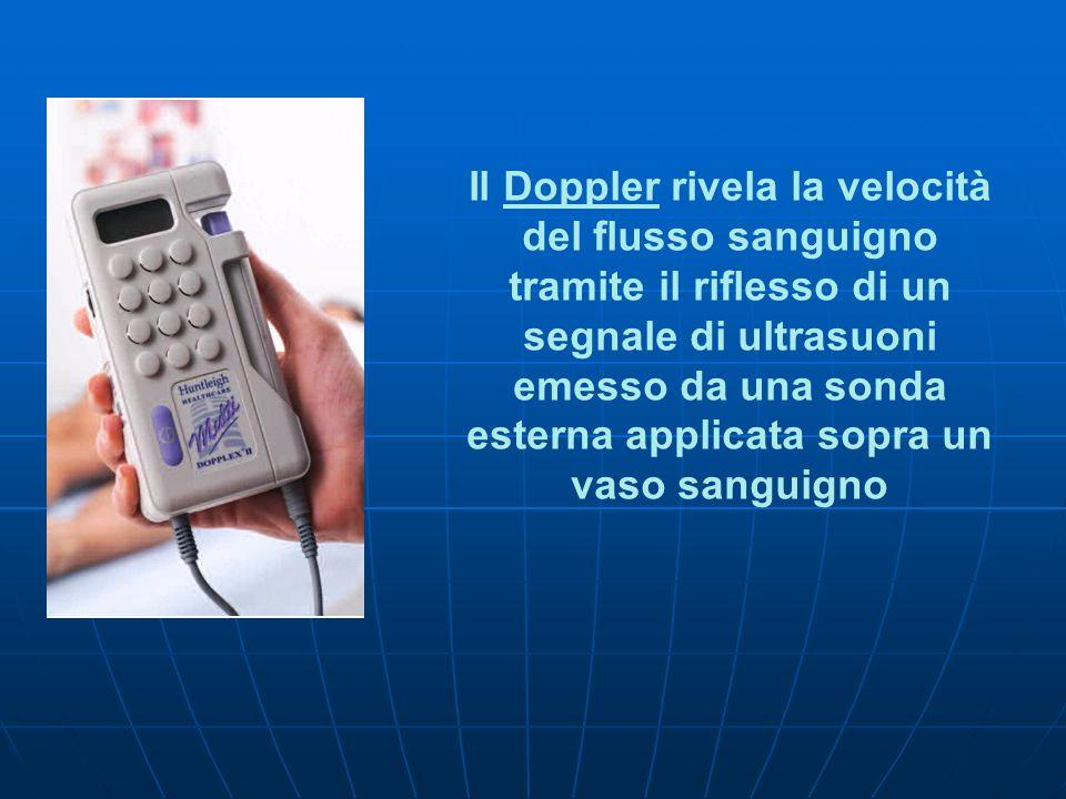 Il Doppler rivela la velocità del flusso sanguigno tramite il riflesso di un segnale di ultrasuoni emesso da una sonda esterna applicata sopra un vaso
