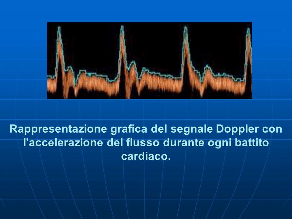 Rappresentazione grafica del segnale Doppler con l'accelerazione del flusso durante ogni battito cardiaco.
