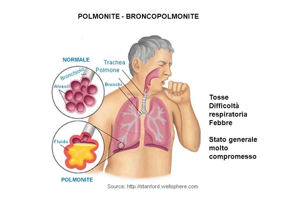 POLMONITE POLMONITE - BRONCOPOLMONITE Tosse Difficoltà respiratoria Febbre Stato generale molto compromesso