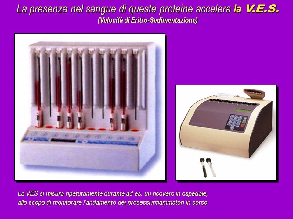 La presenza nel sangue di queste proteine accelera la V.E.S. (Velocità di Eritro-Sedimentazione) La VES si misura ripetutamente durante ad es. un rico
