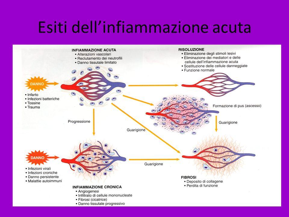 Esiti dellinfiammazione acuta