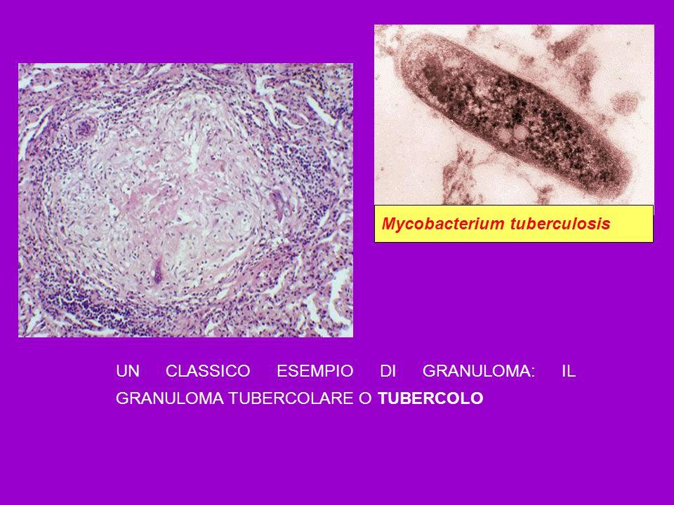 UN CLASSICO ESEMPIO DI GRANULOMA: IL GRANULOMA TUBERCOLARE O TUBERCOLO Mycobacterium tuberculosis