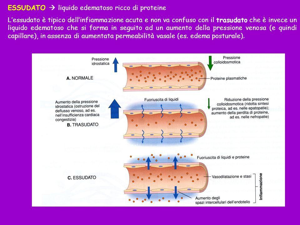 ESSUDATO liquido edematoso ricco di proteine Lessudato è tipico dellinfiammazione acuta e non va confuso con il trasudato che è invece un liquido edem