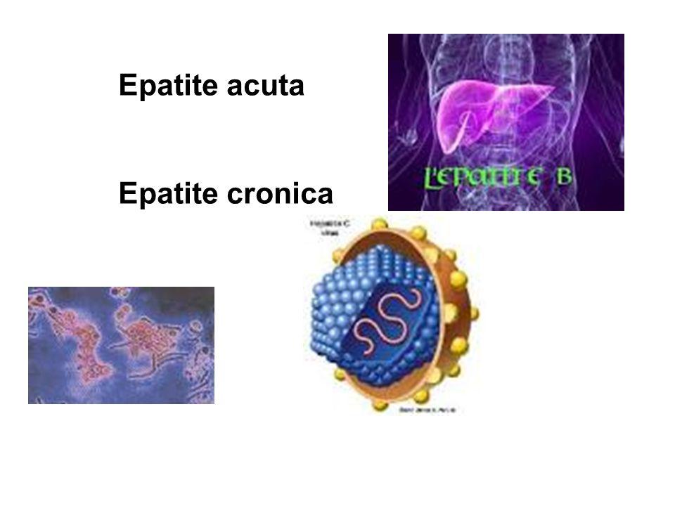 Epatite acuta Epatite cronica