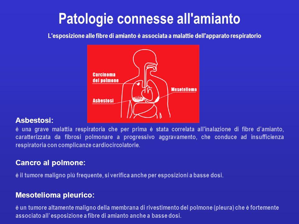 Asbestosi: è una grave malattia respiratoria che per prima è stata correlata all'inalazione di fibre damianto, caratterizzata da fibrosi polmonare a p