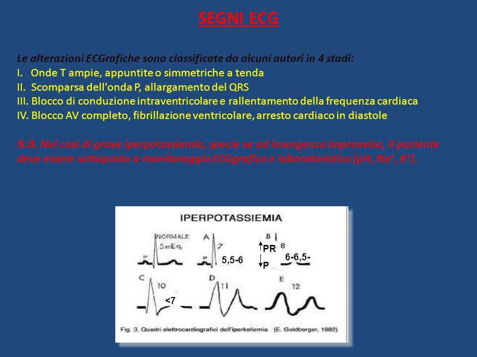 SEGNI ECG Le alterazioni ECGrafiche sono classificate da alcuni autori in 4 stadi: I. Onde T ampie, appuntite o simmetriche a tenda II. Scomparsa dell