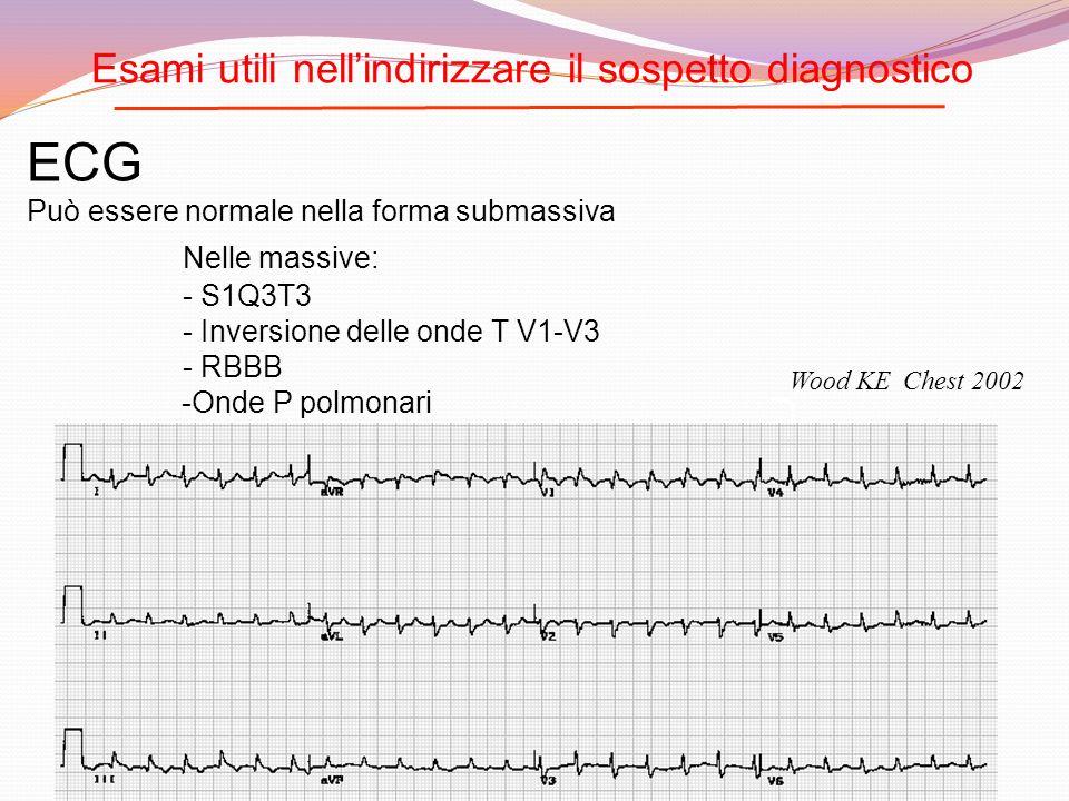 ECG Può essere normale nella forma submassiva Nelle massive: - S1Q3T3 - Inversione delle onde T V1-V3 - RBBB -Onde P polmonari Fibrillazione/flutter a
