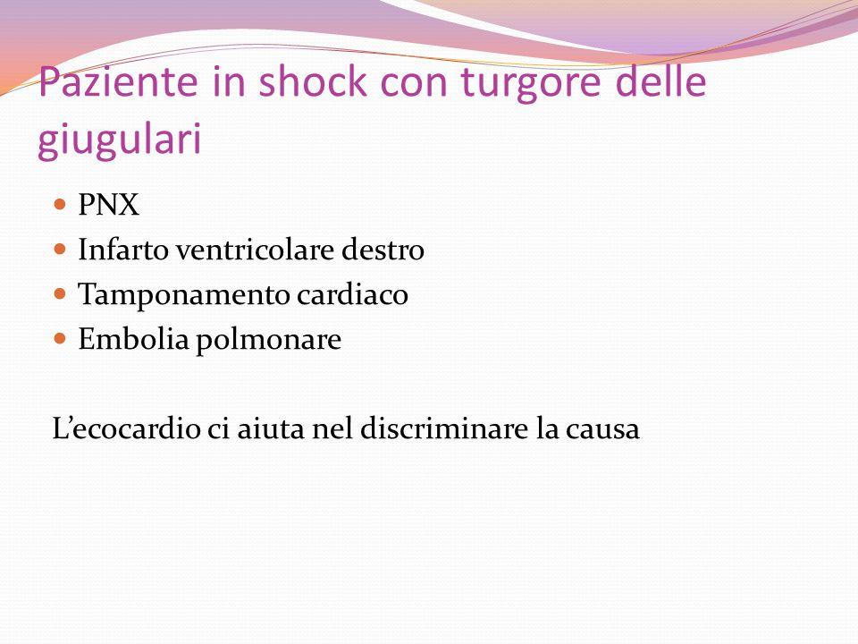 Paziente in shock con turgore delle giugulari PNX Infarto ventricolare destro Tamponamento cardiaco Embolia polmonare Lecocardio ci aiuta nel discrimi
