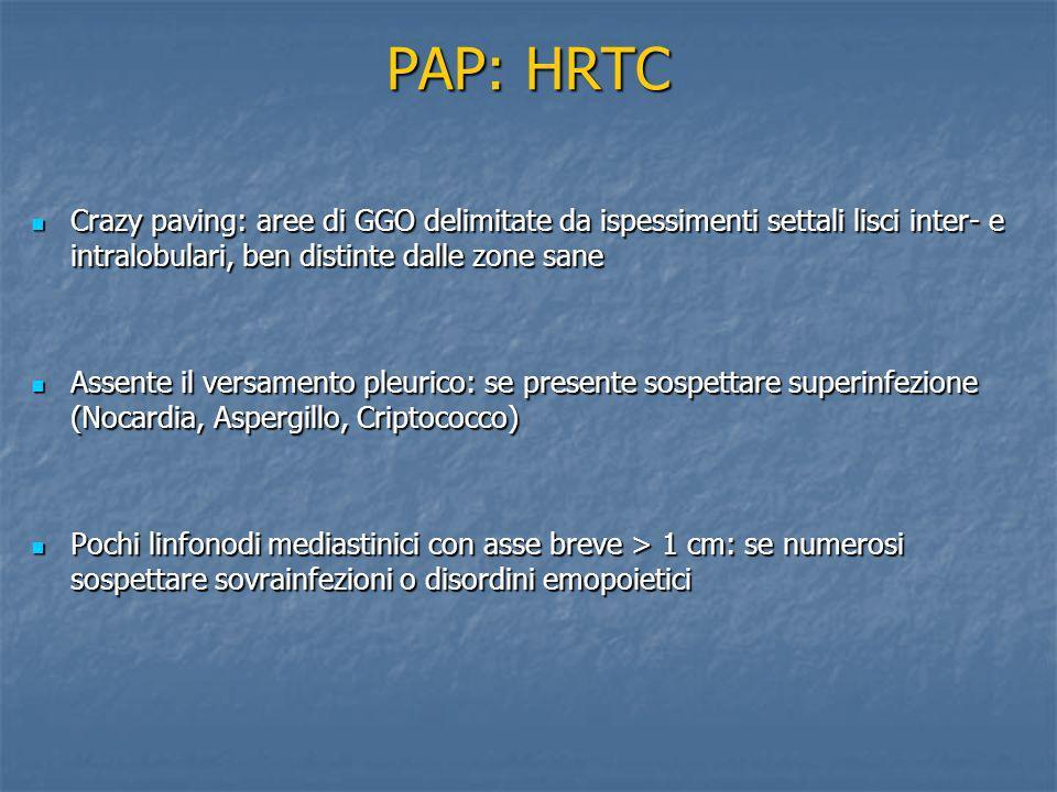 PAP: HRTC Crazy paving: aree di GGO delimitate da ispessimenti settali lisci inter- e intralobulari, ben distinte dalle zone sane Crazy paving: aree d
