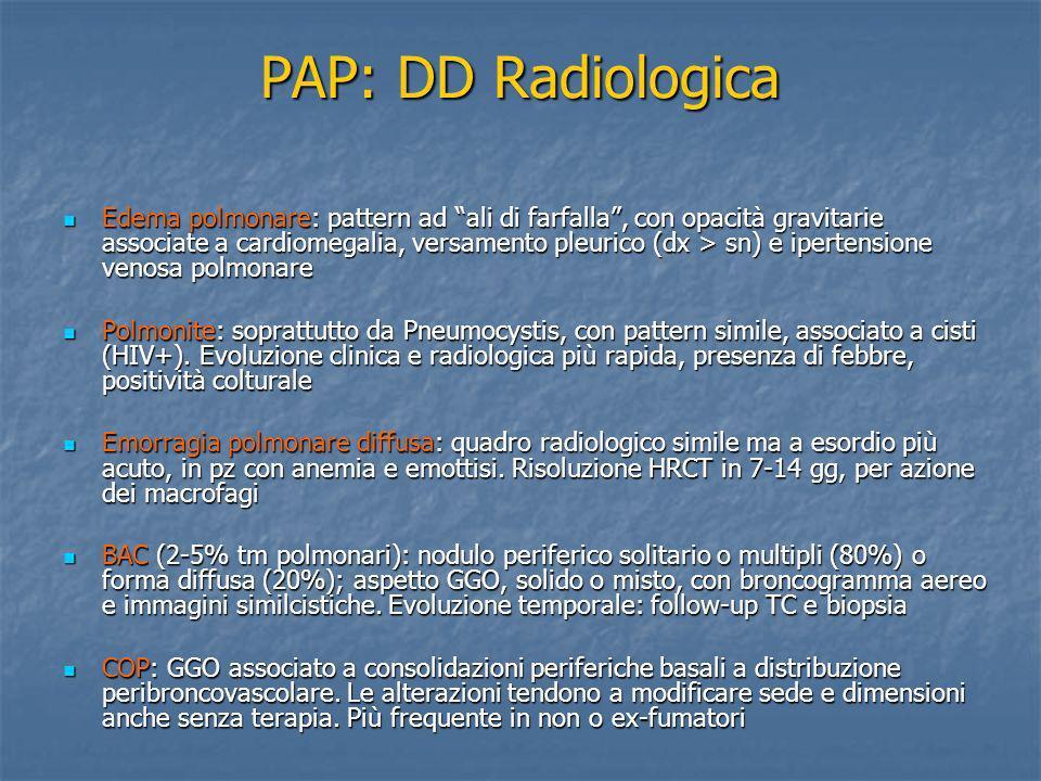 PAP: DD Radiologica Edema polmonare: pattern ad ali di farfalla, con opacità gravitarie associate a cardiomegalia, versamento pleurico (dx > sn) e ipe