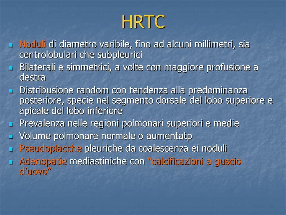 HRTC Noduli di diametro varibile, fino ad alcuni millimetri, sia centrolobulari che subpleurici Noduli di diametro varibile, fino ad alcuni millimetri