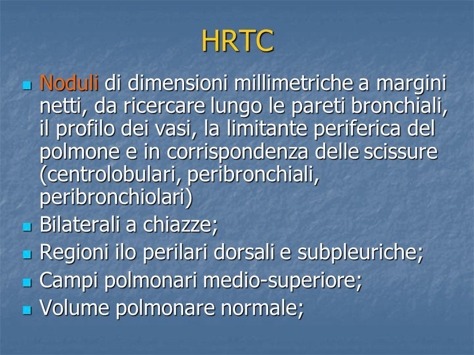 HRTC Noduli di dimensioni millimetriche a margini netti, da ricercare lungo le pareti bronchiali, il profilo dei vasi, la limitante periferica del pol