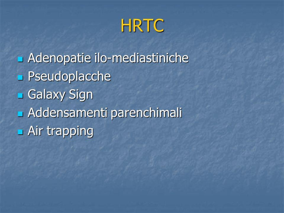 HRTC Adenopatie ilo-mediastiniche Adenopatie ilo-mediastiniche Pseudoplacche Pseudoplacche Galaxy Sign Galaxy Sign Addensamenti parenchimali Addensame
