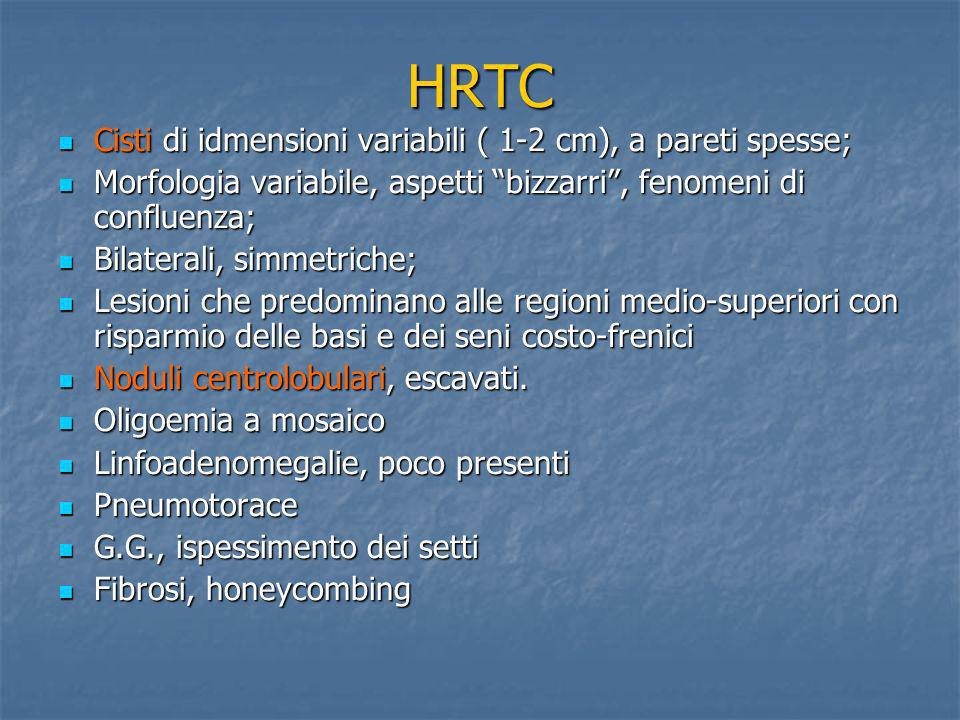 HRTC Cisti di idmensioni variabili ( 1-2 cm), a pareti spesse; Cisti di idmensioni variabili ( 1-2 cm), a pareti spesse; Morfologia variabile, aspetti