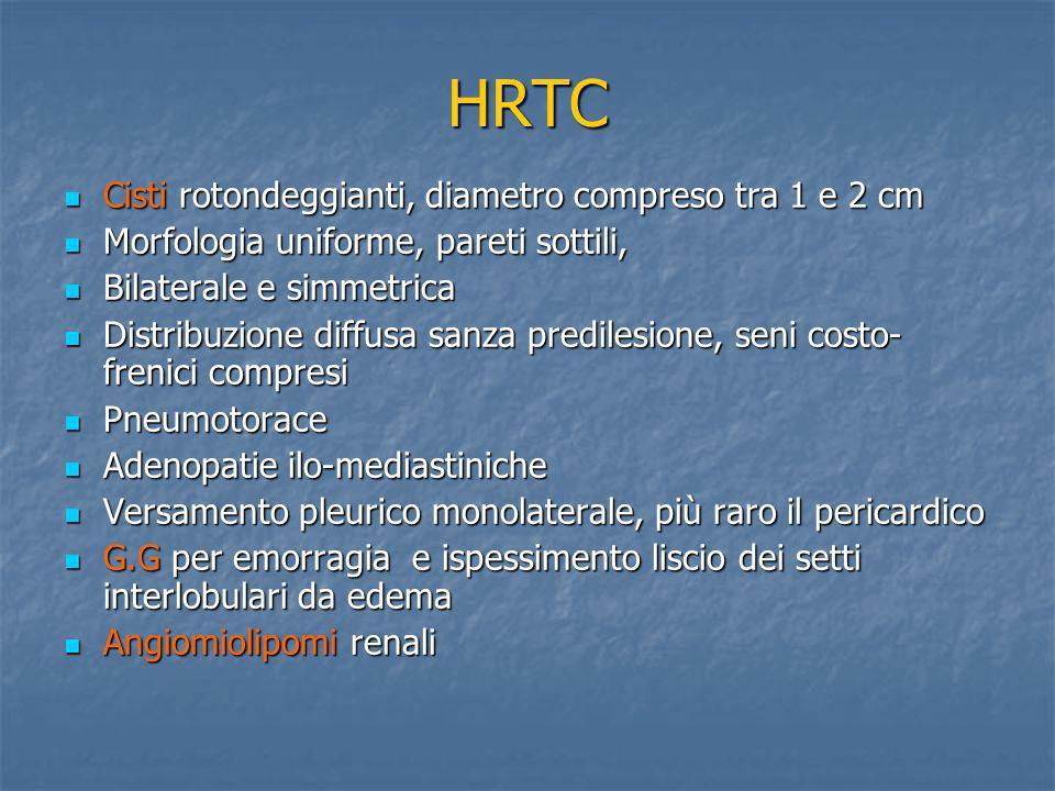 HRTC Cisti rotondeggianti, diametro compreso tra 1 e 2 cm Cisti rotondeggianti, diametro compreso tra 1 e 2 cm Morfologia uniforme, pareti sottili, Mo