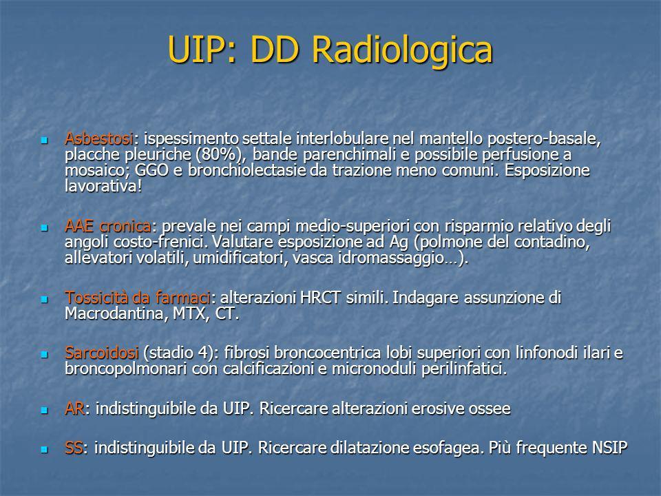 UIP: DD Radiologica Asbestosi: ispessimento settale interlobulare nel mantello postero-basale, placche pleuriche (80%), bande parenchimali e possibile