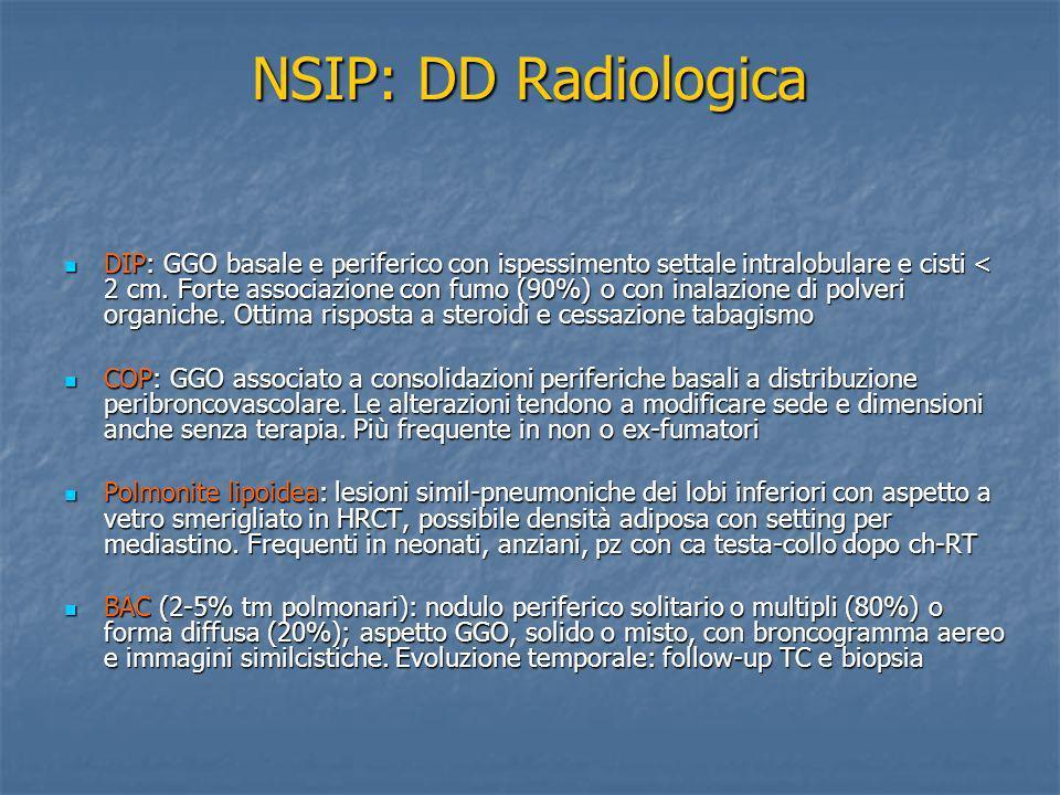 NSIP: DD Radiologica DIP: GGO basale e periferico con ispessimento settale intralobulare e cisti < 2 cm. Forte associazione con fumo (90%) o con inala