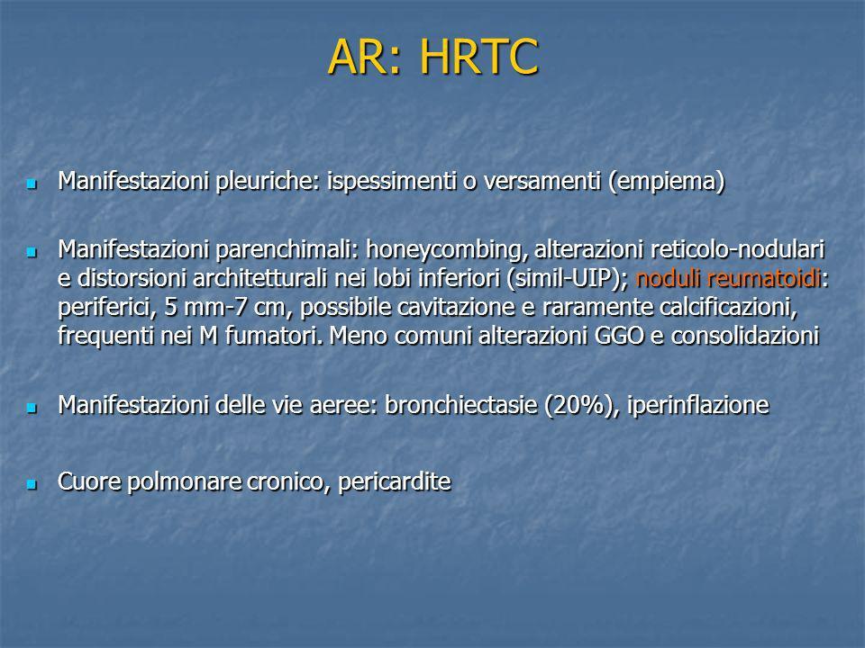 AR: HRTC Manifestazioni pleuriche: ispessimenti o versamenti (empiema) Manifestazioni pleuriche: ispessimenti o versamenti (empiema) Manifestazioni pa