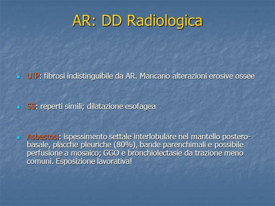 AR: DD Radiologica UIP: fibrosi indistinguibile da AR. Mancano alterazioni erosive ossee UIP: fibrosi indistinguibile da AR. Mancano alterazioni erosi