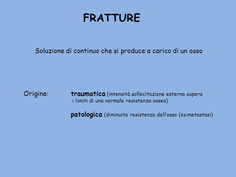 FRATTURE Soluzione di continuo che si produce a carico di un osso Origine: traumatica (intensità sollecitazione esterna supera i limiti di una normale