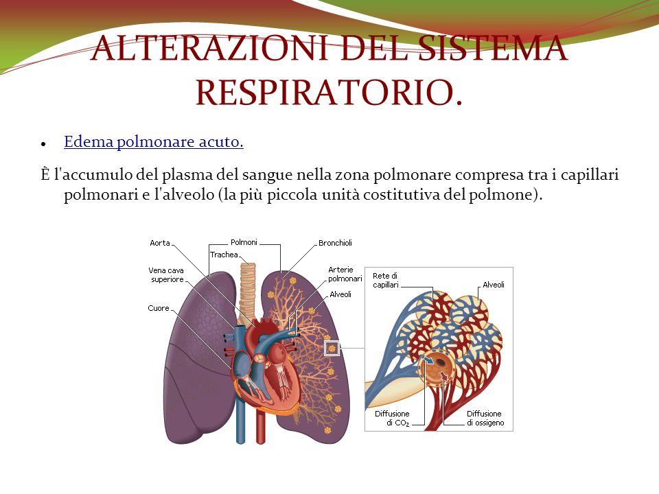 ALTERAZIONI DEL SISTEMA RESPIRATORIO. Edema polmonare acuto. È l'accumulo del plasma del sangue nella zona polmonare compresa tra i capillari polmonar
