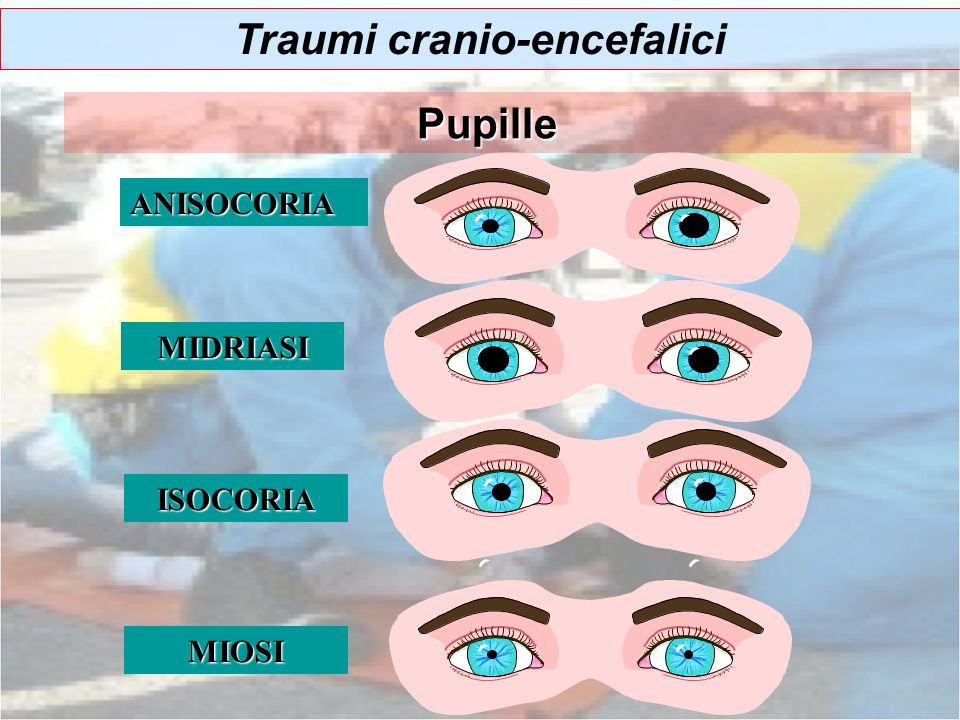 ISOCORIA ANISOCORIA MIDRIASI MIOSI Traumi cranio-encefalici Pupille