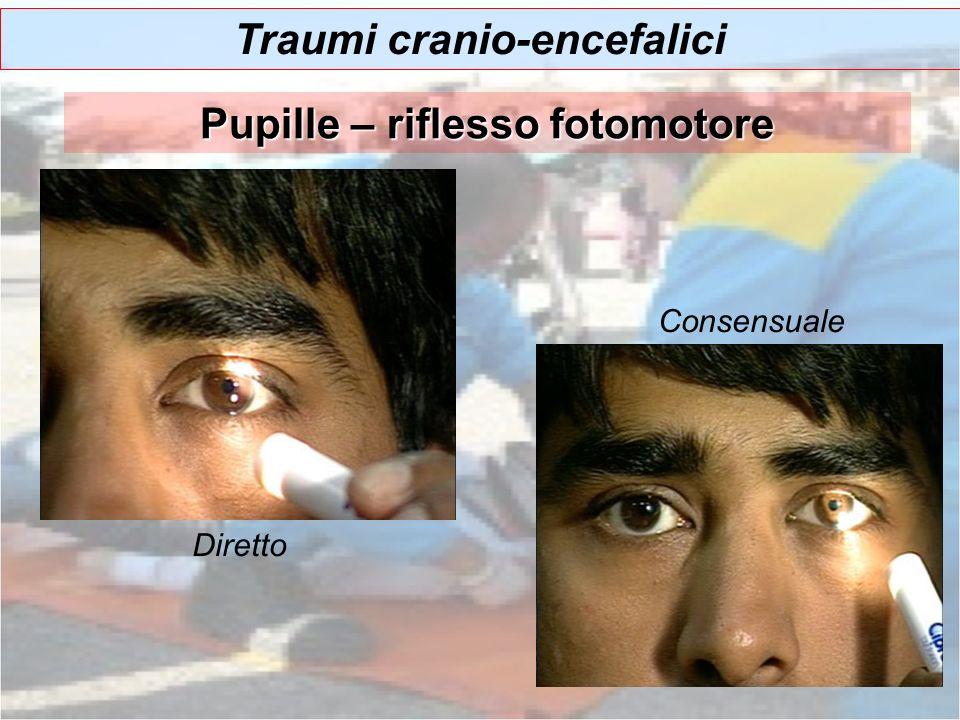 Pupille – riflesso fotomotore Diretto Consensuale