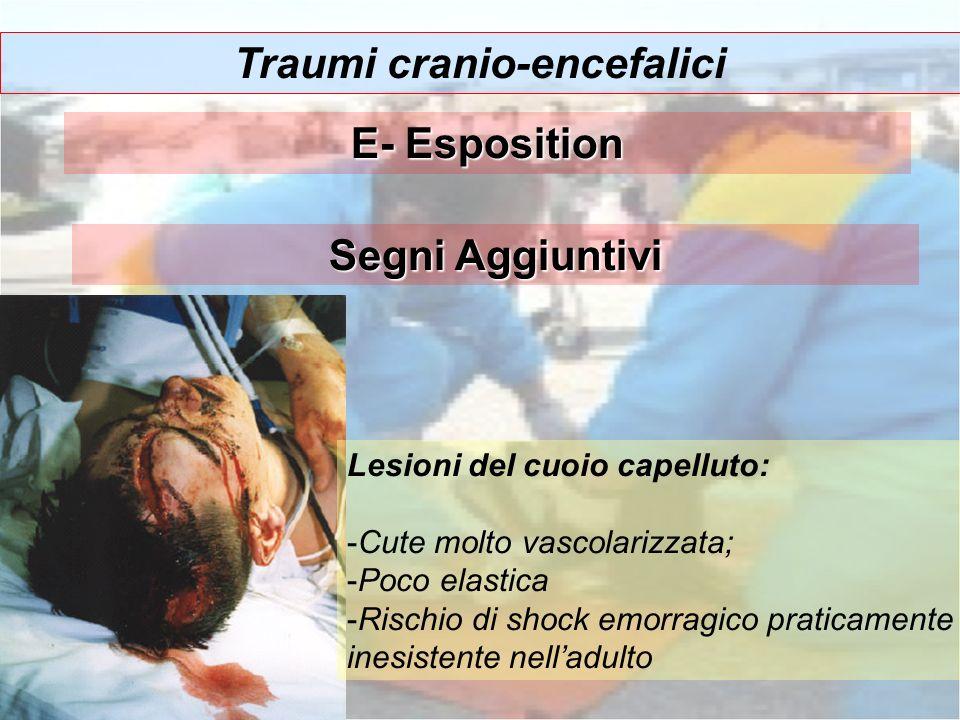 Traumi cranio-encefalici Segni Aggiuntivi Lesioni del cuoio capelluto: -Cute molto vascolarizzata; -Poco elastica -Rischio di shock emorragico pratica