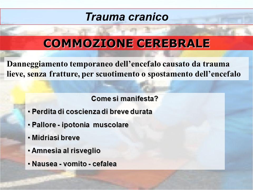 COMMOZIONE CEREBRALE Danneggiamento temporaneo dellencefalo causato da trauma lieve, senza fratture, per scuotimento o spostamento dellencefalo Come s