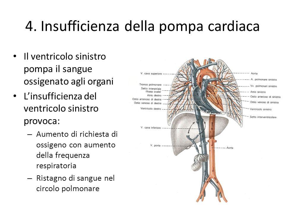 4. Insufficienza della pompa cardiaca Il ventricolo sinistro pompa il sangue ossigenato agli organi Linsufficienza del ventricolo sinistro provoca: –
