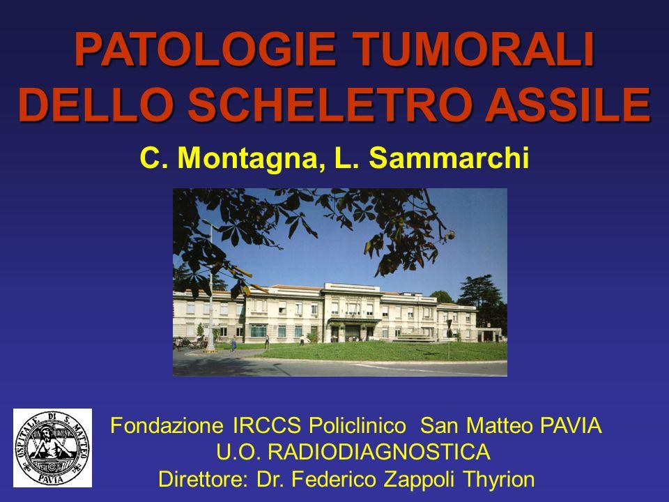 SARCOMA DI EWING RACHIDE LOMBO-SACRALE AGGRESSIVO, METASTASI EPIDURALI, RADIOSENSIBILE DOLORE, FEBBRE, SINTOMI NEUROLOGICI ASPETTI RX/TC: –OSTEOLISI A TARLATURA –CORTICALE INTERROTTA –SCARSA REAZIONE PERIOSTALE –SCARSO C.E.