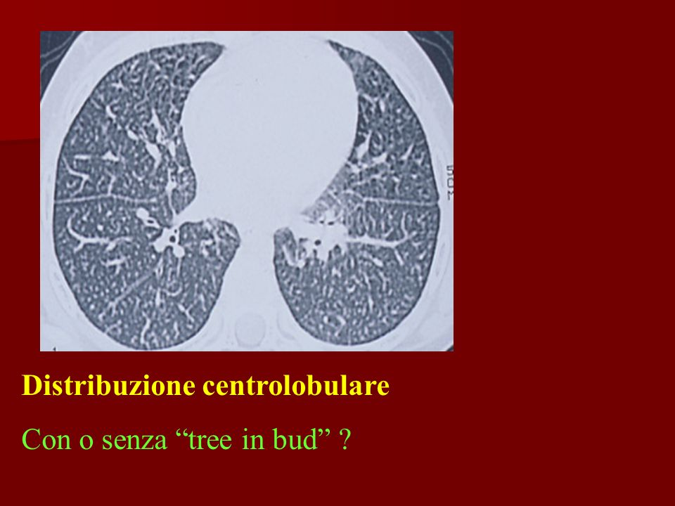 Con o senza tree in bud ?