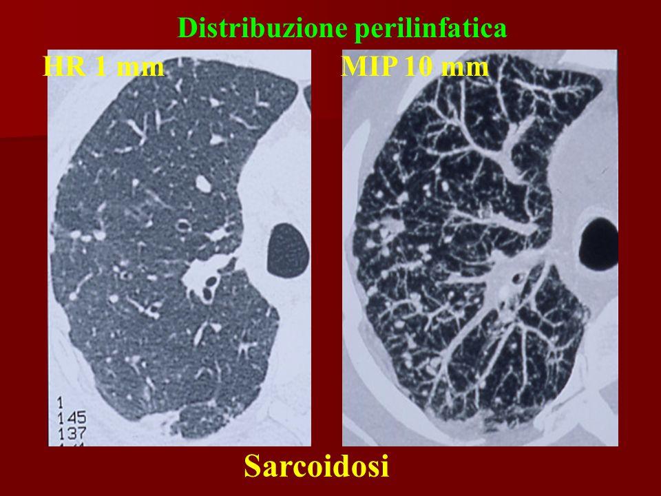 Distribuzione perilinfatica Sarcoidosi HR 1 mmMIP 10 mm