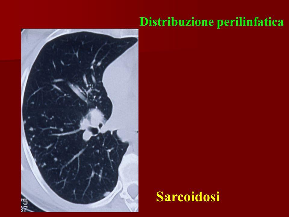 Distribuzione perilinfatica Sarcoidosi