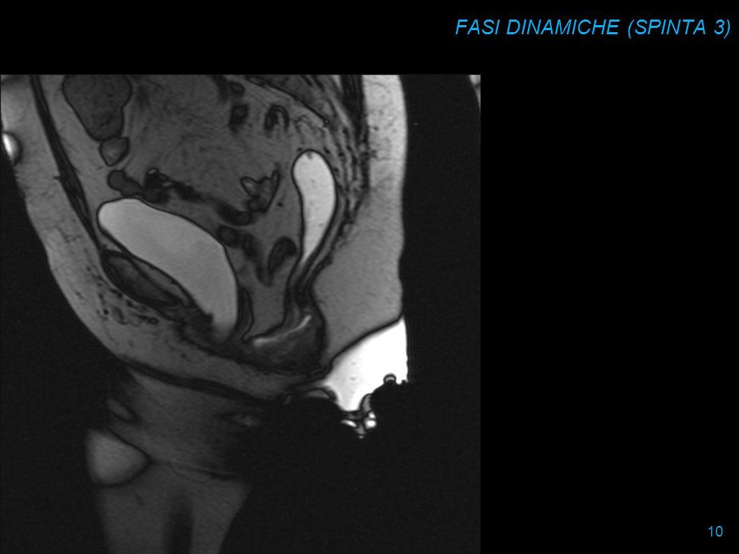 FASI DINAMICHE (SPINTA 3) 10