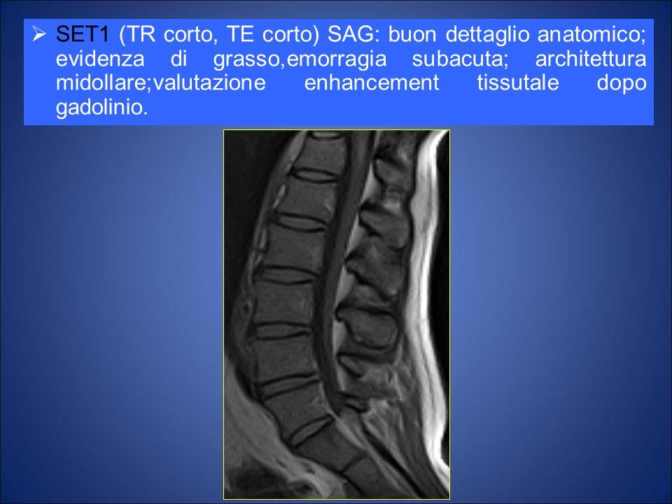 SET1 (TR corto, TE corto) SAG: buon dettaglio anatomico; evidenza di grasso,emorragia subacuta; architettura midollare;valutazione enhancement tissuta