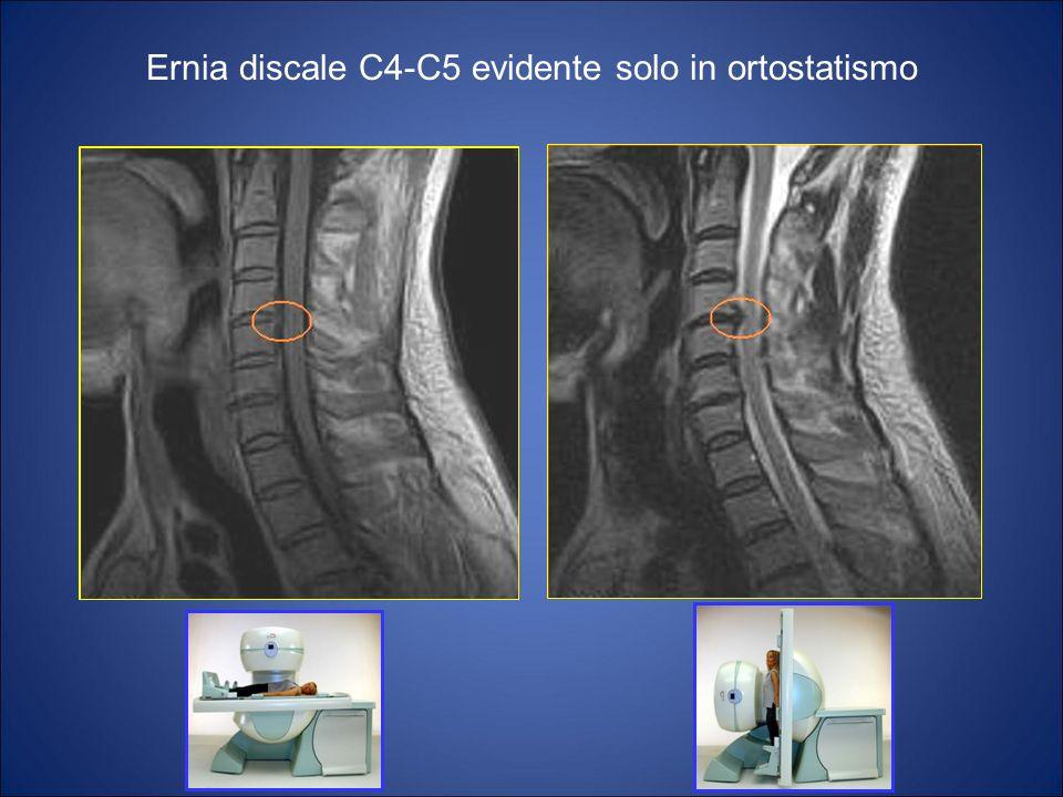 Ernia discale C4-C5 evidente solo in ortostatismo
