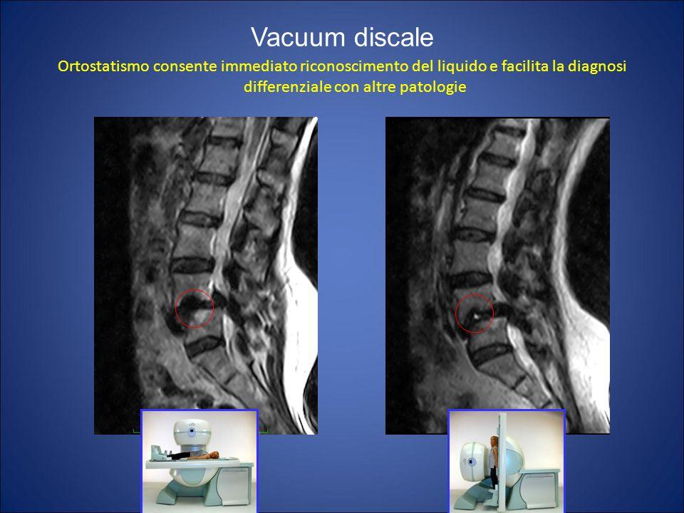 Ortostatismo consente immediato riconoscimento del liquido e facilita la diagnosi differenziale con altre patologie Vacuum discale