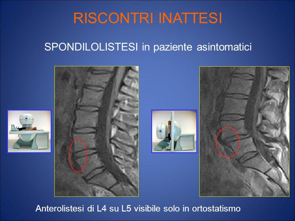 RISCONTRI INATTESI SPONDILOLISTESI in paziente asintomatici Anterolistesi di L4 su L5 visibile solo in ortostatismo