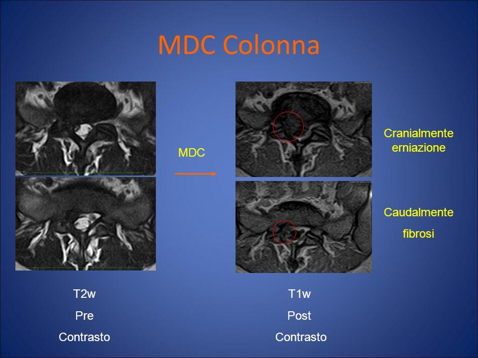 MDC Colonna MDC Cranialmente erniazione Caudalmente fibrosi T2w Pre Contrasto T1w Post Contrasto